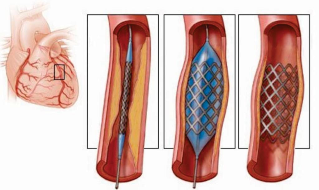 Imagen: Un diagrama de los diferentes stents utilizados en la angioplastia (Fotografía cortesía de Open Biomedical Initiative).