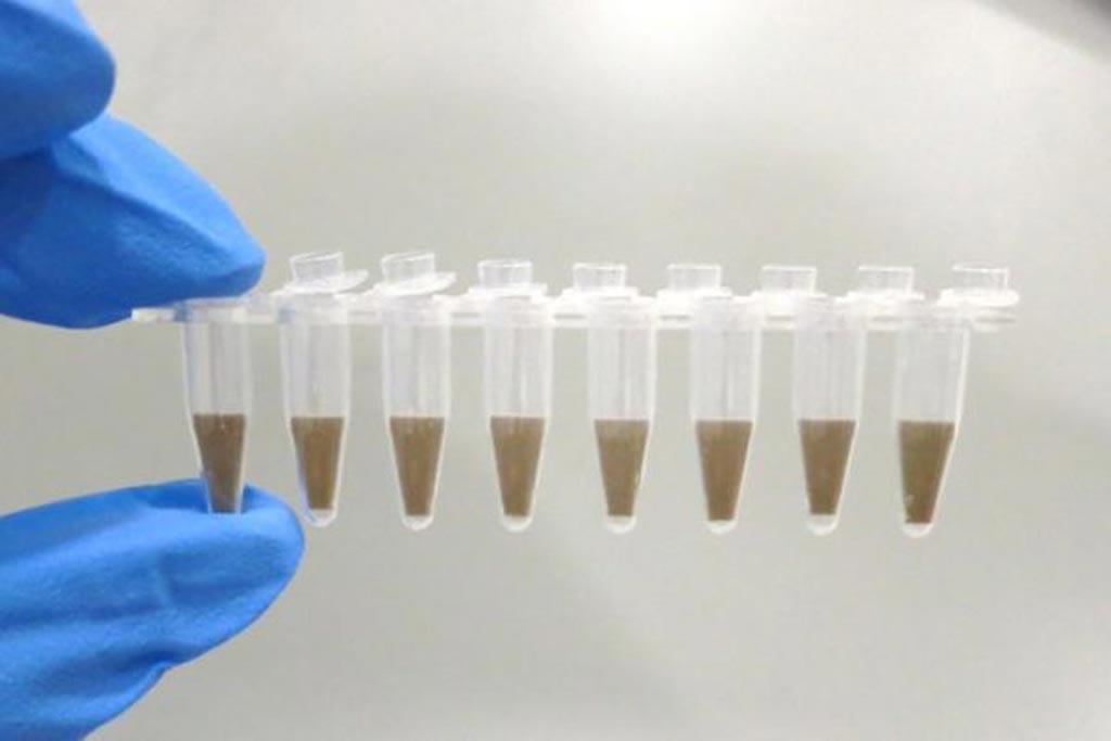 Imagen: Se prevé que el mercado global de pruebas de PCR superará los 7.400 millones de dólares en 2025 (Fotografía cortesía de iStock).
