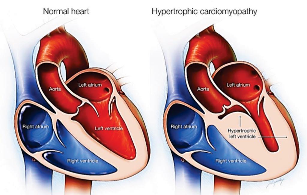 Imagen: Diagrama de un corazón normal en comparación con uno con miocardiopatía hipertrófica (Fotografía cortesía de la Clínica Mayo).
