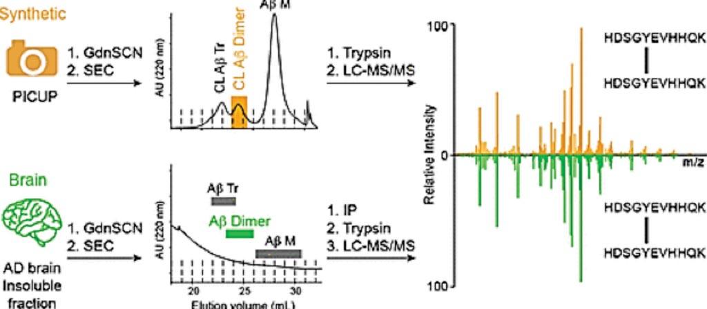Imagen: Validación de dímeros de beta amiloide en cerebros de pacientes con Alzheimer (Fotografía cortesía del Instituto de Investigación en Biomedicina).