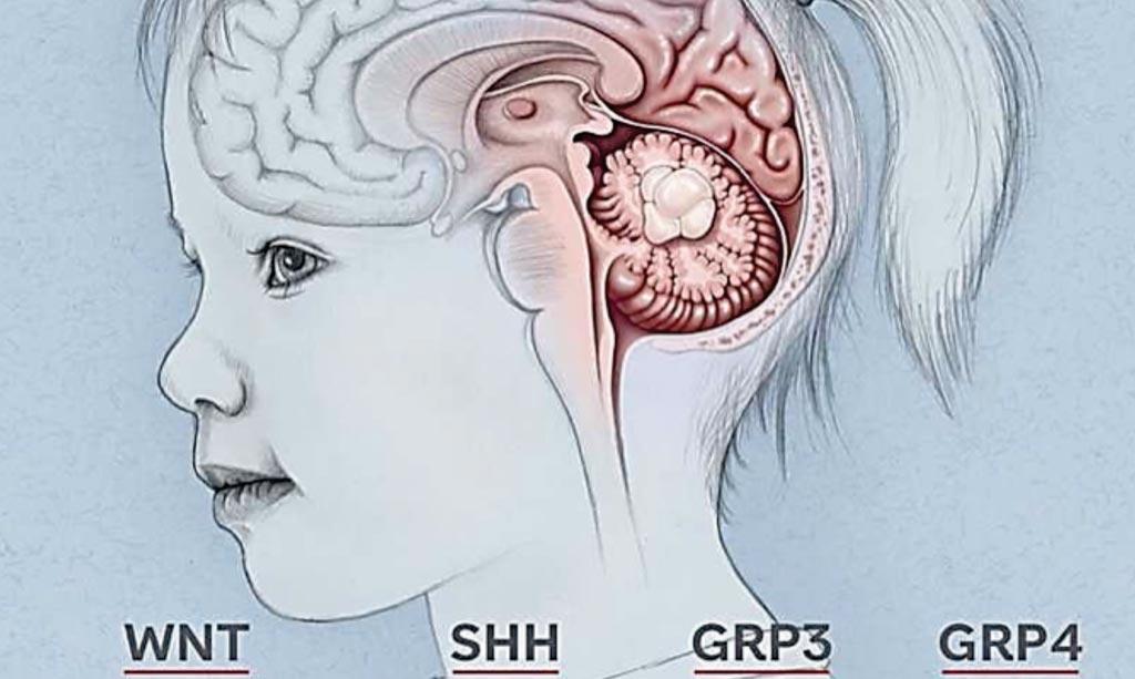 Imagen: Se han identificado seis genes que predisponen a los portadores a desarrollar el tumor cerebral, meduloblastoma (Fotografía cortesía del Hospital de Investigación Infantil St. Jude).