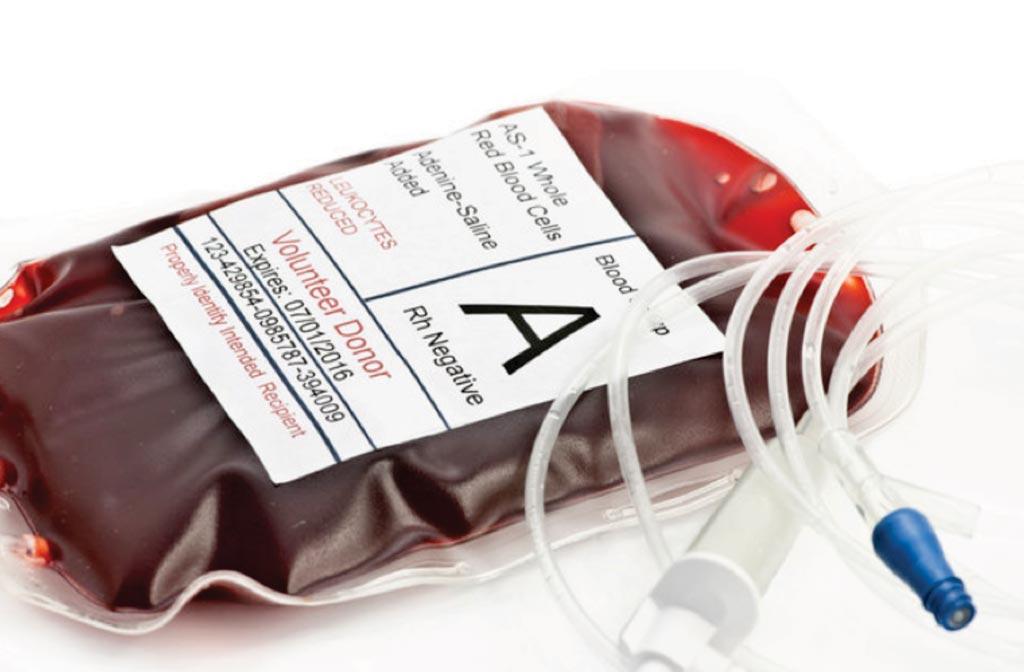 Imagen: Hemoclasificación de una bolsa de transfusión de sangre para el grupo A Rh negativo (Fotografía cortesía de Sherry Yates Young).