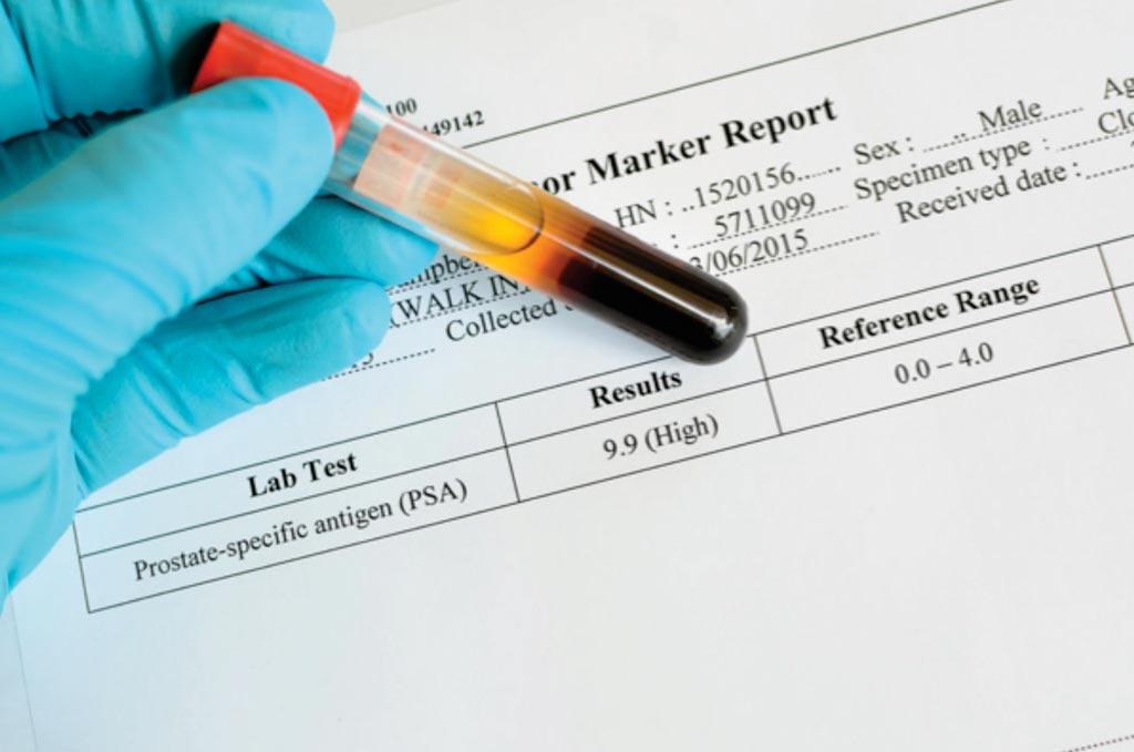 Imagen: Los niveles elevados de antígeno prostático específico (PSA) en la sangre pueden ser un indicador de cáncer de próstata y llevar a más investigaciones de diagnóstico (Fotografía cortesía de KeraNews).