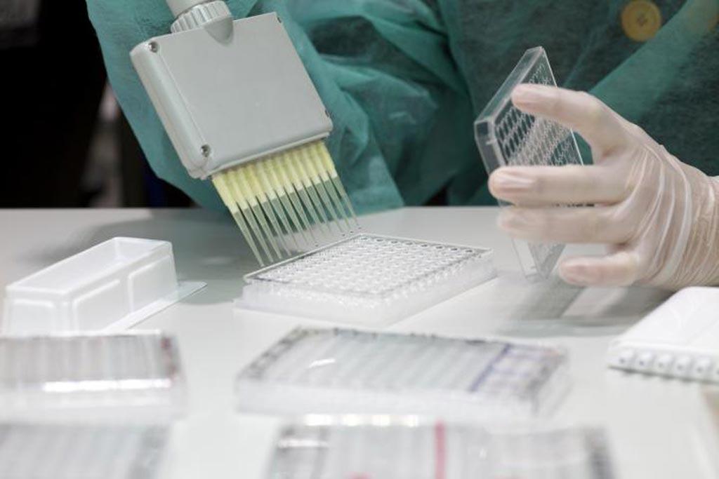 Imagen: La reducción de la variabilidad de los ensayos de arrays de suspensión cuantitativa es fundamental para el éxito de los estudios seroepidemiológicos multicéntricos y grandes (Fotografía cortesía de Pau Fabregat).
