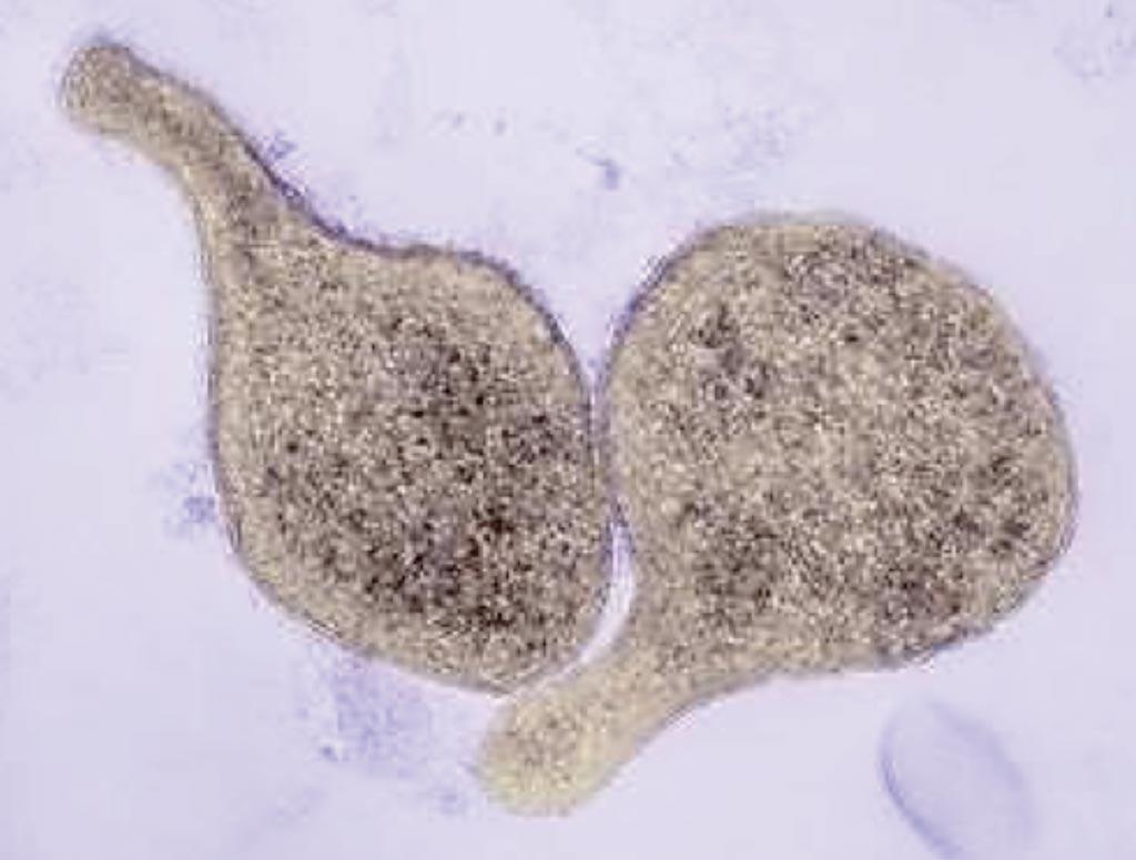 Imagen: Una microfotografía electrónica de barrido (SEM) de Mycoplasma genitalium, que es una causa común de infecciones de transmisión sexual, ocupando el segundo lugar en prevalencia detrás de Chlamydia trachomatis (Fotografía cortesía de Thomas Deerinck, NCMIR).