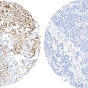 Imagen: Tejido mamario de una paciente en recaída con marcadores de fosforilación activa (color marrón, izquierdo), en comparación con el tejido mamario de una paciente sin recaída y que no tiene estos marcadores activos (derecha) (Fotografía cortesía del Centro Nacional de Investigaciones Oncológicas).