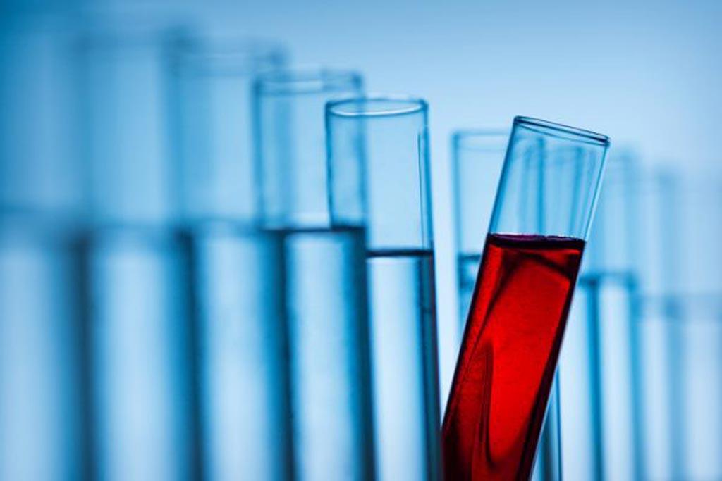 Imagen: Se espera que el mercado mundial de pruebas de IVD crezca un 4% anual hasta 77.800 millones de dólares para el año 2023 (Fotografía cortesía de iStock).