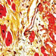 Imagen: Microfotografía de gran aumento de la amiloidosis cardíaca senil obtenida de una muestra de autopsia (Fotografía cortesía de Nephron).