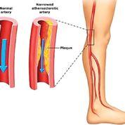 Imagen: Diagrama de la enfermedad arterial periférica; los vasos sanguíneos de las piernas son los que se ven afectados con más frecuencia (Fotografía cortesía de la Clínica de Manejo del Dolor Emed Pain).