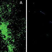 Imagen: Mycobacterium leprae coloreada con auramina en un corte de tejido FFPE observada con el objetivo × 40 del microscopio de fluorescencia de diodos emisores de luz A: muestra con alto BI; B. Muestra con bajo BI (Fotografía cortesía del Instituto de Investigación Armauer Hansen).