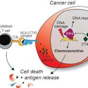 Imagen: El CT45, un marcador biomarcador que se encuentra en algunas células de cáncer de ovario, se asocia con una supervivencia prolongada sin enfermedad en mujeres con cáncer de ovario avanzado (Fotografía cortesía del Centro Médico de la Universidad de Chicago).