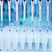 Imagen: La compañía de biotecnología, Igenomix, ha desarrollado la primera prueba molecular para identificar las nueve especies bacterianas más comunes responsables de la endometritis crónica, una inflamación persistente del endometrio uterino que afecta particularmente a las mujeres con endometriosis (Fotografía cortesía de Patricia Inacio, PhD).