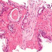 Imagen: Fotomicrografía de una biopsia de próstata de adenocarcinoma de próstata, tipo convencional (acinar), la forma más común de cáncer de próstata (Fotografía cortesía de Nephron).