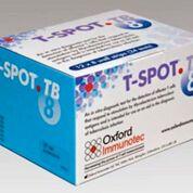 Imagen: La prueba T-SPOT.TB es una prueba de sangre única y de una sola visita para detectar la tuberculosis (TB), también conocida como análisis de liberación de interferón gamma (IGRA) (Fotografía cortesía de Oxford Immunotec).