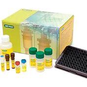 Imagen: Los ensayos de Inflamación Humana Bio-Plex Pro, permiten la detección y cuantificación de 37 biomarcadores clave de inflamación en un solo ensayo (Fotografía cortesía de Bio-Rad Laboratories).