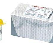 Imagen: El kit de genotipificación de grupos sanguíneos ID Core XT (Fotografía cortesía de Progenika Biopharma).