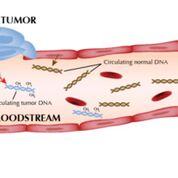 Imagen: La capacidad de detectar ADN tumoral circulante libre de células en la sangre brinda la oportunidad de desarrollar pruebas no invasivas para medir la carga tumoral y detectar firmas moleculares en los tumores que se asocian con la resistencia a la terapia (Fotografía cortesía del Instituto de Cáncer Huntsman).