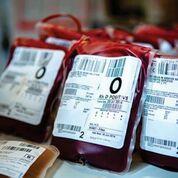 Imagen: Las víctimas de traumas mayores que reciben transfusiones de glóbulos rojos empaquetados de 22 días de edad o más pueden enfrentar un riesgo aumentado de muerte dentro de las 24 horas siguientes (Fotografía cortesía de South West London Pathology).