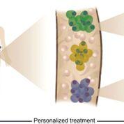 Imagen: La heterogeneidad tumoral, la evolución clonal y la resistencia a la terapia se pudieron revelar mediante el análisis de células individuales de pacientes con mieloma múltiple (Fotografía cortesía del Instituto de Ciencia Weizmann).