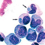 Imagen: Fotomicrografía de un frotis de la capa leucocitaria de la sangre de un paciente recogida en el tercer día de hospitalización. Las inclusiones de Anaplasma phagocytophilum se observan en el citoplasma de dos estadios diferentes de granulocitos (un metamielocito y un mielocito). Las flechas señalan una mórula (Fotografía cortesía de Westchester Medical Center).