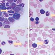 Imagen: Inclusión tipo cuerpos de Howell-Jolly dentro de un neutrófilo (flecha). Aparece como una inclusión completamente separada y densamente basófila en el citoplasma de neutrófilos. Se tomaron fotos de diferentes casos (Fotografía cortesía del Centro de Ciencias de la Salud de la Universidad de Texas en Houston).