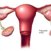 Imagen: Un diagrama que muestra un ovario normal y otro con síndrome de ovario poliquístico; en este último los ovarios pueden desarrollar numerosas colecciones pequeñas de líquido (folículos) y no pueden liberar los óvulos regularmente (Fotografía cortesía de la Clínica Mayo).