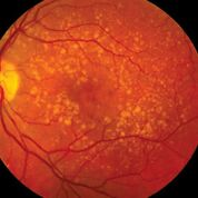 Imagen: Una foto de fondo de ojo que muestra una degeneración macular intermedia relacionada con la edad (Fotografía cortesía del Instituto Nacional Ocular).