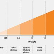 Imagen: Los niveles de procalcitonina (PCT) y su relación con la sepsis clínica y el shock séptico (Fotografía cortesía de Technology Networks).