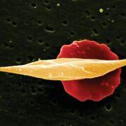 Imagen: Una microfotografía electrónica de barrido (SEM) que muestra células falciformes largas frente a más glóbulos rojos normales en forma de disco (Fotografía cortesía de Wellcome Trust).