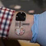Imagen: El sensor estimula el sudor debajo de un pequeño parche, incluso cuando el usuario está fresco y descansando. El sensor puede proporcionar, durante un período de horas, de forma no invasiva, la misma información que se encuentra en la sangre (Fotografía cortesía de Joseph Fuqua, Servicios Creativos de la Universidad de Cincinnati).