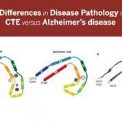 Imagen: Estas imágenes resaltan las diferencias encontradas en los pliegues tau asociados con la enfermedad de Alzheimer y la encefalopatía traumática crónica (ETC). También muestran un elemento no identificado encontrado en la ETC que no existe en la enfermedad de Alzheimer (Fotografía cortesía de la Facultad de Medicina de la Universidad de Indiana).