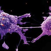 Imagen: Una microfotografía electrónica de barrido (SEM) de células de cáncer de pulmón (Fotografía cortesía de Cancer Research UK).