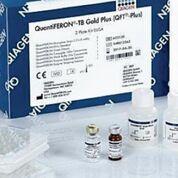 Imagen: El panel de control QuantiFERON-TB Gold Plus (Fotografía cortesía de Qiagen).