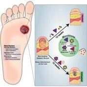 Imagen: Una representación gráfica de la variación a nivel de cepa y de especie en el microbioma de las heridas diabéticas se asocia con los resultados clínicos y la eficacia terapéutica (Fotografía cortesía de la Universidad de Pennsylvania).