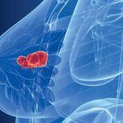 Imagen: El análisis de sangre por Natera detecta las recaídas en el cáncer de mama (Fotografía cortesía de la Universidad de Leicester).