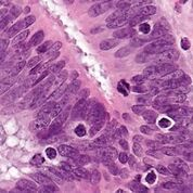 Imagen: Una microfotografía que muestra linfocitos infiltrantes de tumores en un caso de cáncer colorrectal con evidencia de alta inestabilidad de los microsatélites (MSI-H) en la inmunocoloración (Fotografía cortesía de Nephron).