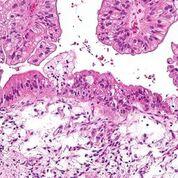 Imagen: Una micrografía de un carcinoma de ovario mucinoso (Fotografía cortesía de Wikimedia Commons).