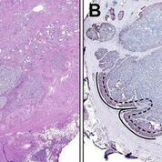 Imagen: (A) Vista de bajo aumento del nódulo de cáncer con la masa del tumor central que consiste predominantemente del patrón cuatro de Gleason cribiforme invasivo. (B) Vista de bajo aumento del mismo nódulo de cáncer con un borde externo de coloración de sintafilina acentuada (SNPH). El frente invasivo se define como el borde externo de cada nódulo de cáncer que colinda con el estroma adyacente, tal como se describe en esta imagen como la zona entre las líneas discontinuas y las líneas continuas. Las flechas denotan coloración de SNPH acentuada en la interfaz tumor-estroma (Fotografía cortesía de la revista American Journal of Pathology).