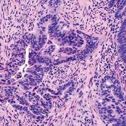 Imagen: Una histopatología del carcinoma colorrectal: un ejemplo de adenocarcinoma moderadamente diferenciado que muestra estructuras glandulares complicadas en un estroma desmoplásico (Fotografía cortesía de la Facultad de Medicina David Geffen de la Universidad de California).
