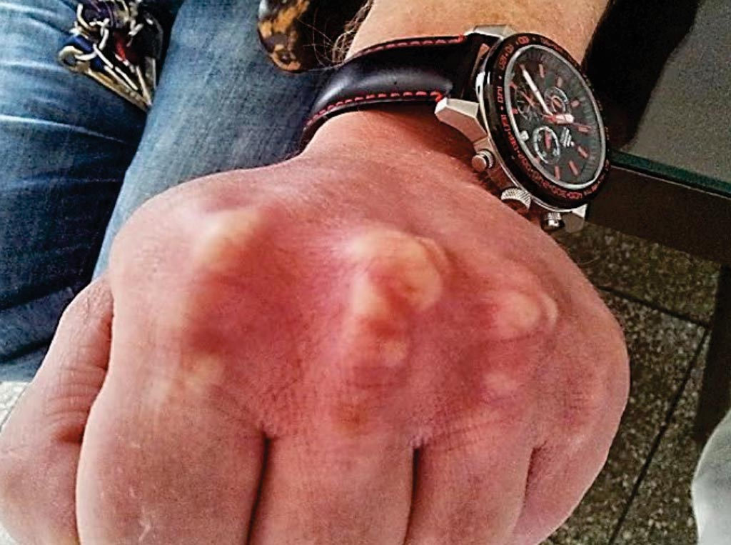 Imagen: Xantomas tendinosos en la mano de un paciente con hipercolesterolemia familiar (Fotografía cortesía de ScreenPro FH).