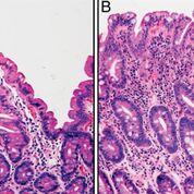 Imagen: Características histológicas representativas del intestino delgado. En la biopsia duodenal normal (A), las vellosidades se alargan y las criptas son relativamente cortas. Esto contrasta con el tejido del intestino delgado afectado por la enfermedad celíaca (B), que muestra una marcada reducción de las vellosidades y una hiperplasia de la cripta. (Fotografía cortesía de Tracy R. Ediger MD e Ivor D. Hill, MD ChB).