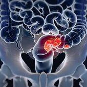Imagen: La identificación de un Subtipo Molecular de Consenso (CMS, por sus siglas en inglés) de un paciente con cáncer colorrectal podría ayudar a los oncólogos a determinar el tratamiento más efectivo (Fotografía cortesía de Universidad de California del Sur).