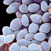 Imagen: Una fotomicrografía electrónica de barrido de las células de la levadura Candida albicans (Fotografía cortesía de Science Photo Library).