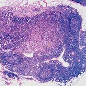 Imagen: Una histopatología de ganglios linfáticos con adenocarcinoma metastásico del colon (Fotografía cortesía del Dr. Ed Uthman M.D).