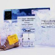 Imagen: El kit de aislamiento de ADN, UltraClean BloodSpin, diseñado para aislar ADN genómico y mitocondrial de sangre total (fresca, congelada o almacenada a 4°C), de la capa de glóbulos blancos o de las células cultivadas (Fotografía cortesía de MO BIO Laboratories).