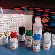 Imagen: Un ejemplo de un kit de análisis ELISA diseñado para la determinación cuantitativa de la concentración de la interleuquina 6 humana (IL-6) en suero y plasma (Fotografía cortesía de Thermo Fisher Scientific).