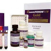 Imagen: La prueba QuantiFERON-TB Gold (QFT) es un análisis novedoso de sangre que mide la respuesta inmune mediada por las células de los individuos infectados con Mycobacterium tuberculosis (Fotografía cortesía de Qiagen).