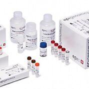 Imagen: La prueba de detección Epi ProColon, una prueba de cribado en la sangre, para el cáncer colorrectal, es un ensayo de reacción en cadena de la polimerasa in vitro para la detección cualitativa de la metilación del gen Septin9 en el ADN aislado del plasma de los pacientes (Fotografía cortesía de Epigenomics).