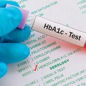 Imagen: El análisis de sangre de hemoglobina glucosilada (HbA1c) proporciona un nivel promedio de azúcar en la sangre para los últimos dos o tres meses (Fotografía cortesía de HealthEngine).