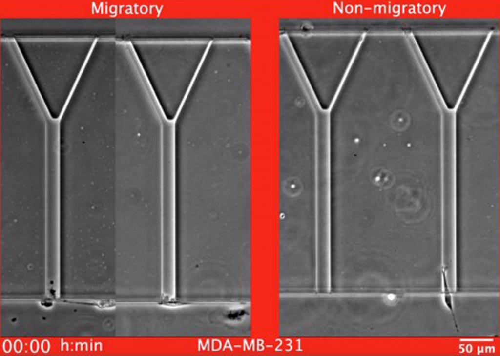 Imagen: Ejemplos de células de cáncer de mama, MDA-MB-231, migratorias y no migratorias mientras migran en el dispositivo MAqCI (Ensayo Microfluídico para la cuantificación de la invasión celular) (Fotografía cortesía de Christopher L. Yankaskas, Universidad Johns Hopkins).